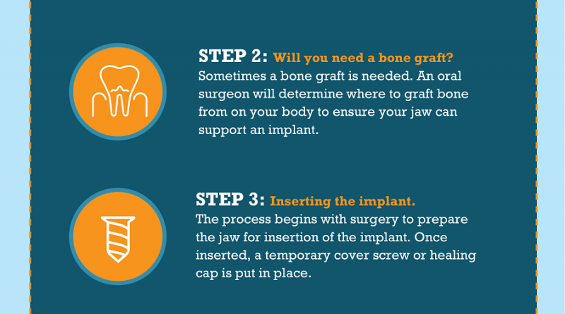 Fixing Tooth Loss With Dental Implants